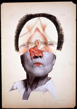 Wangechi Mutu, Complete Prolapsus of the Uterus, 2004, Glitter, ink, collage on found medical illustration paper, 46 x 31cm
